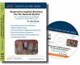 FLS-07 DVD Faculty Lecture Series: Treatment Planning and Prosthetic Procedures for Single Implant Crowns